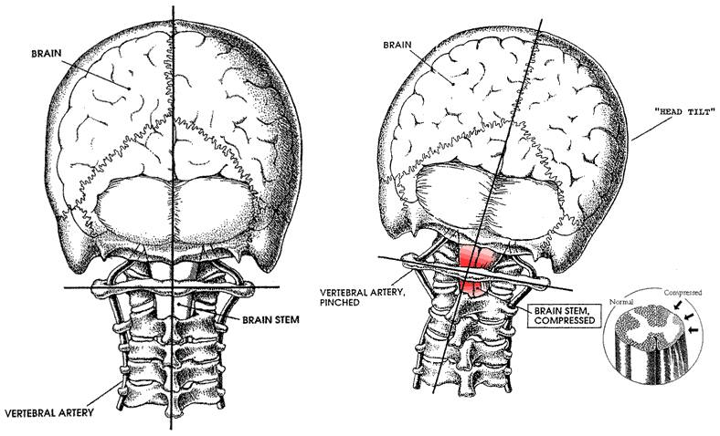 Upper-Cervical-neck